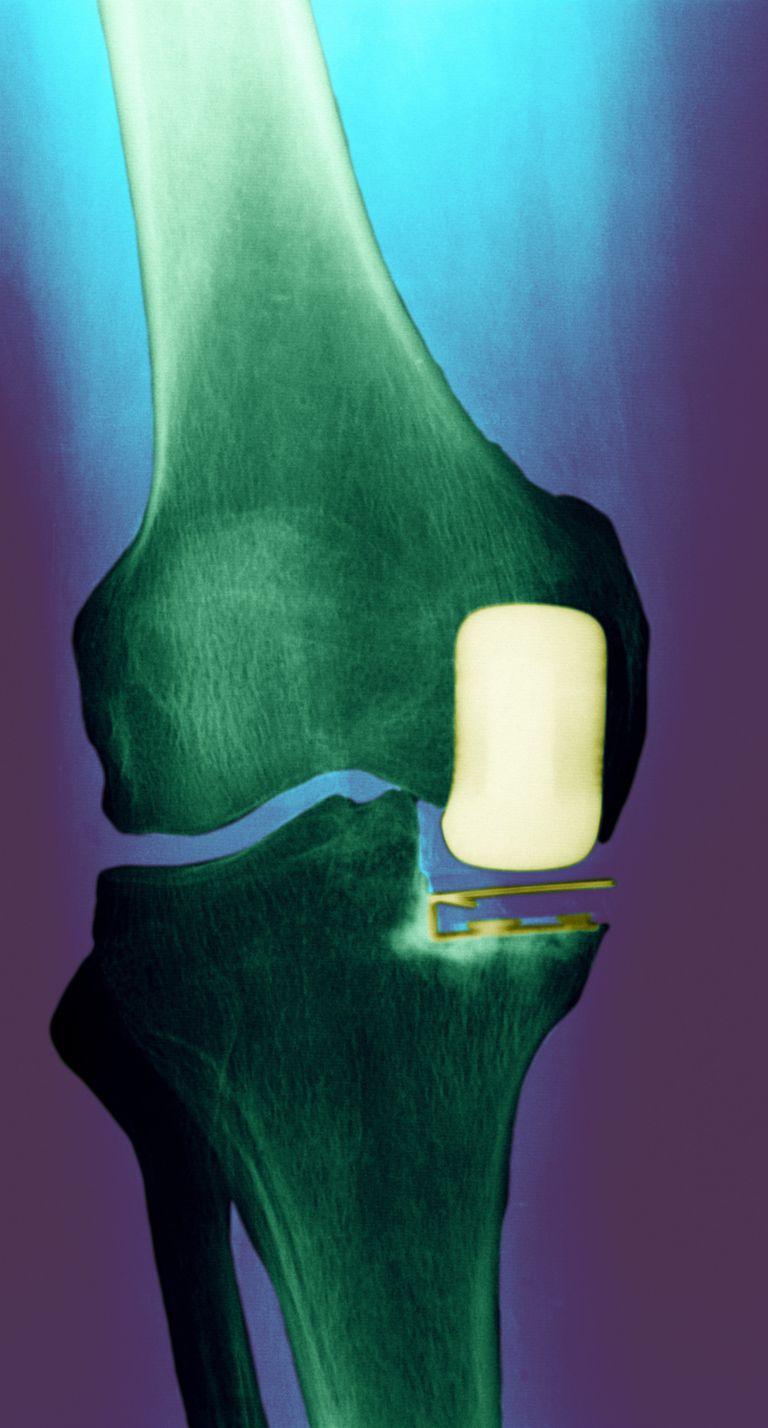 partial knee