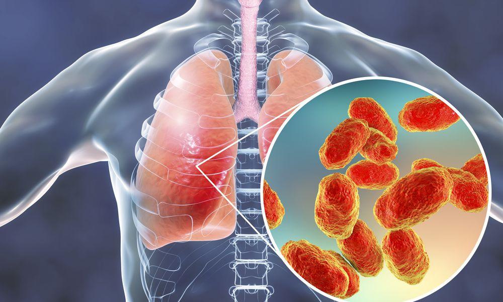 Pneumonia caused by Haemophilus influenzae bacteria, illustr