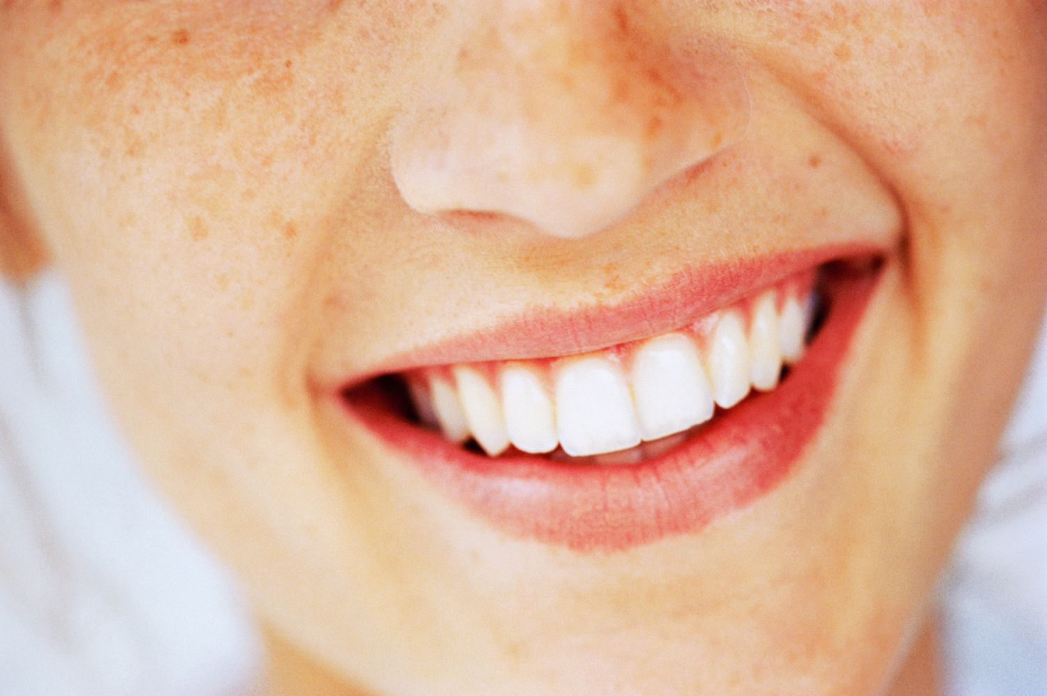 Person smiling showing teeth including cuspids