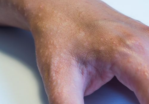 Hand closeup with eczema