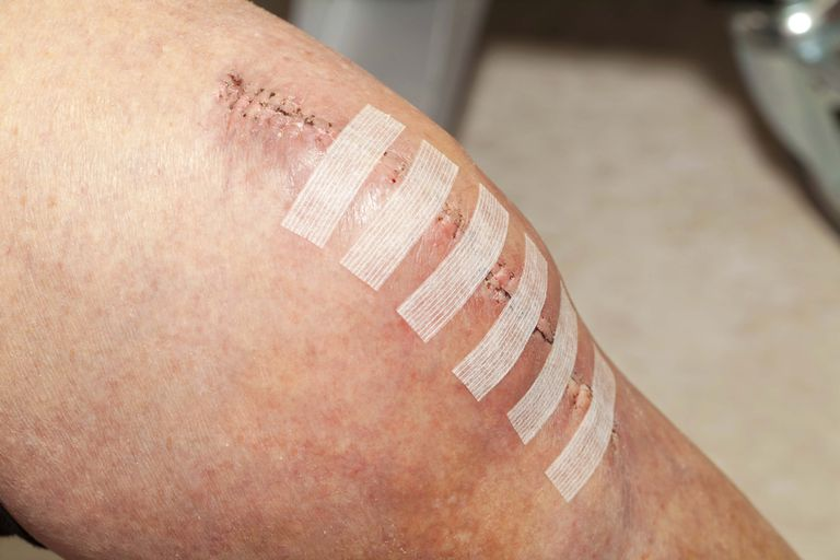 incision on a person's knee