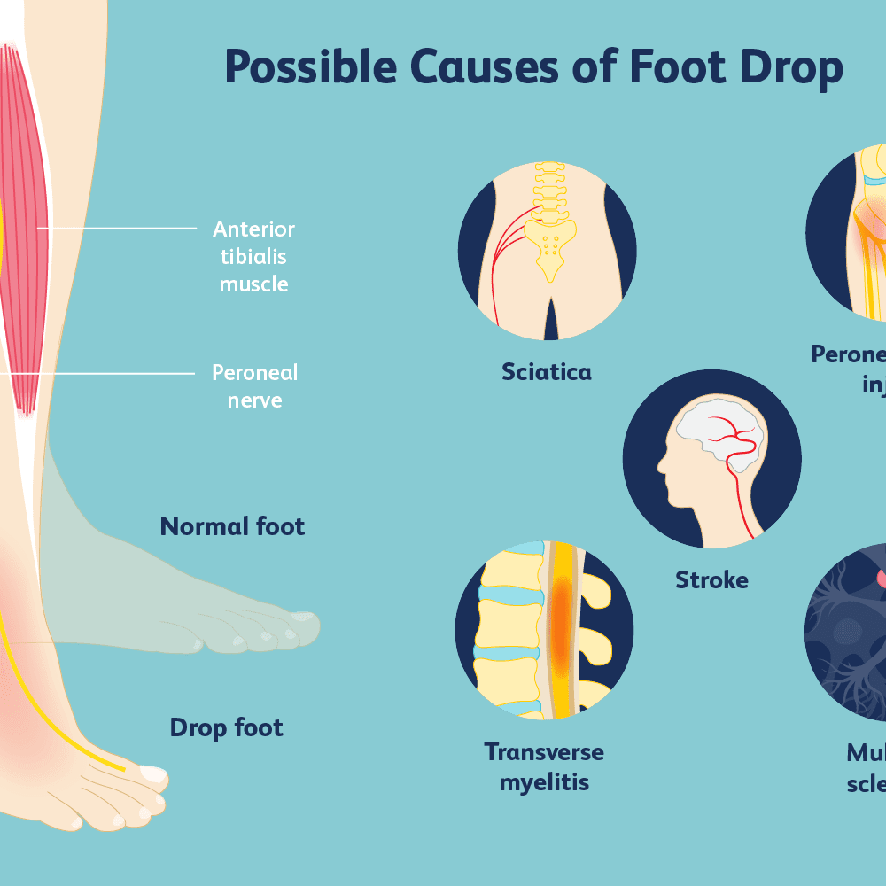 Physical Therapy Exercises For Drop Foot