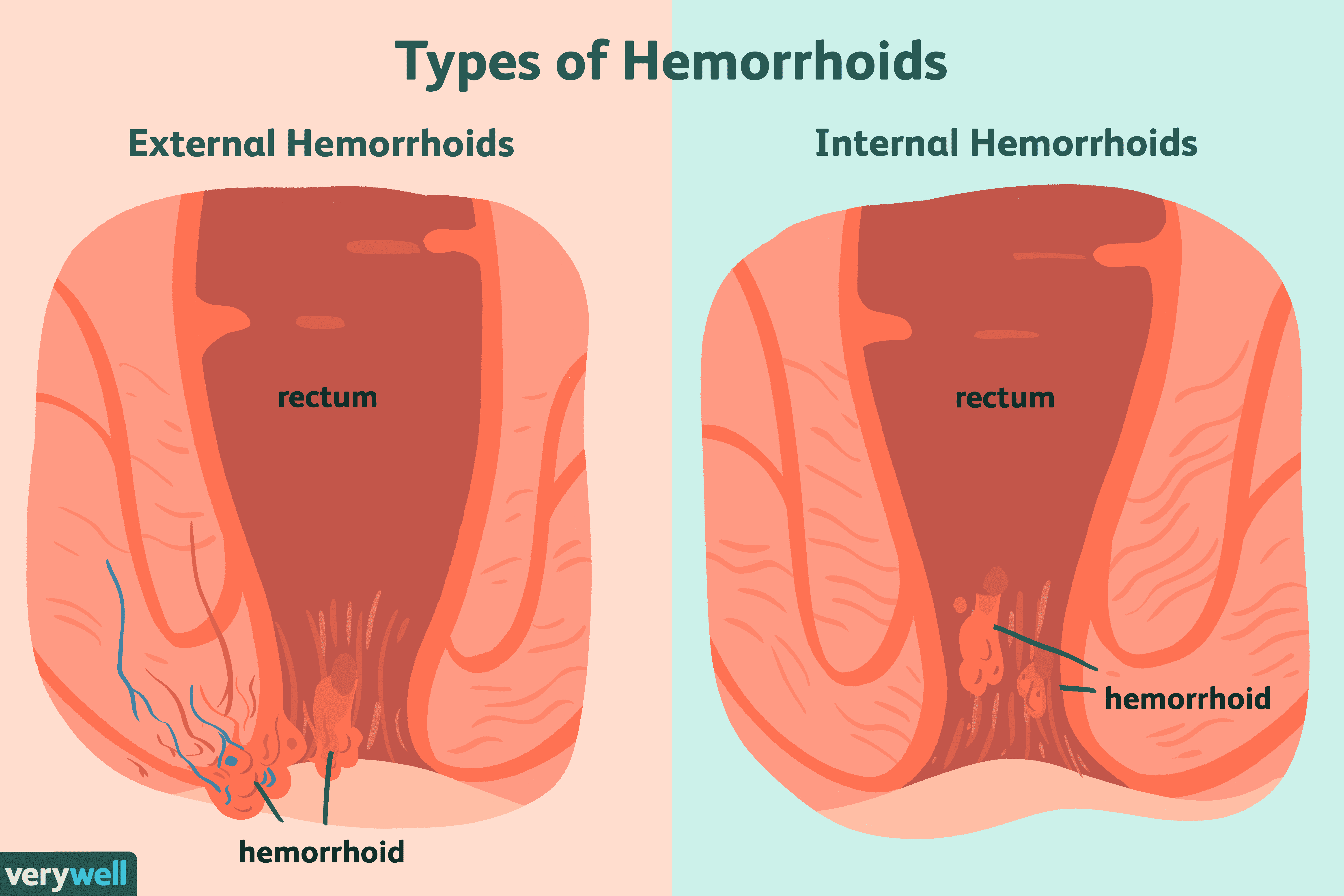 Hemorrhoids: Symptoms, Causes, Diagnosis, Treatment, and Coping