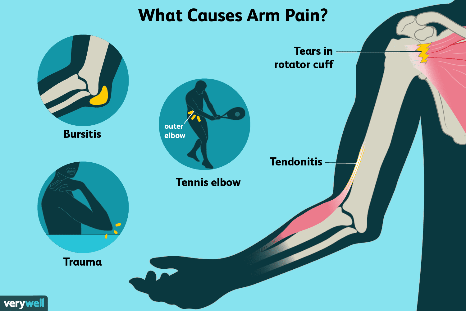 what causes muscle pain in arm