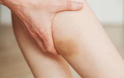 Strong bruised shin - yellow large hematoma on the shin - footballer injury