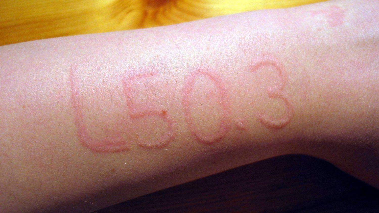 Dermatographism Rash or Skin Writing