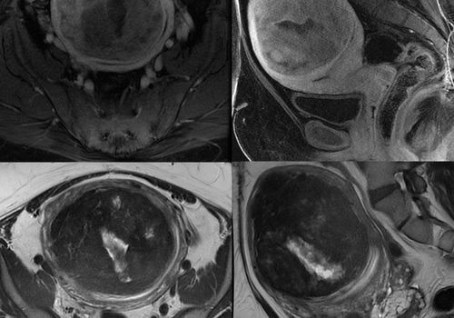 Magnetic Resonance Images of Woman with Uterine Fibroids