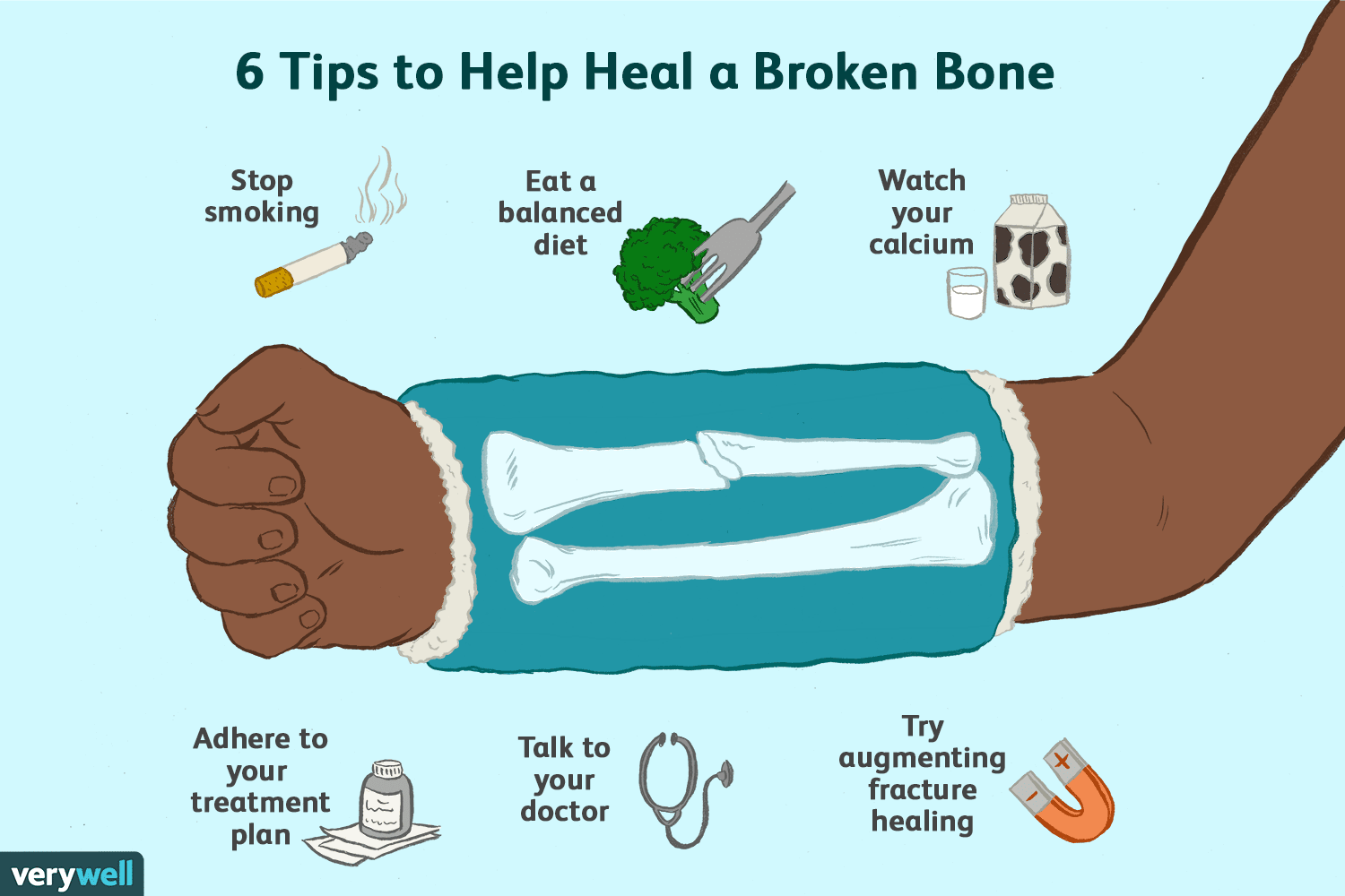 6 Ideas For Healing Broken Bones As Quickly As Possible