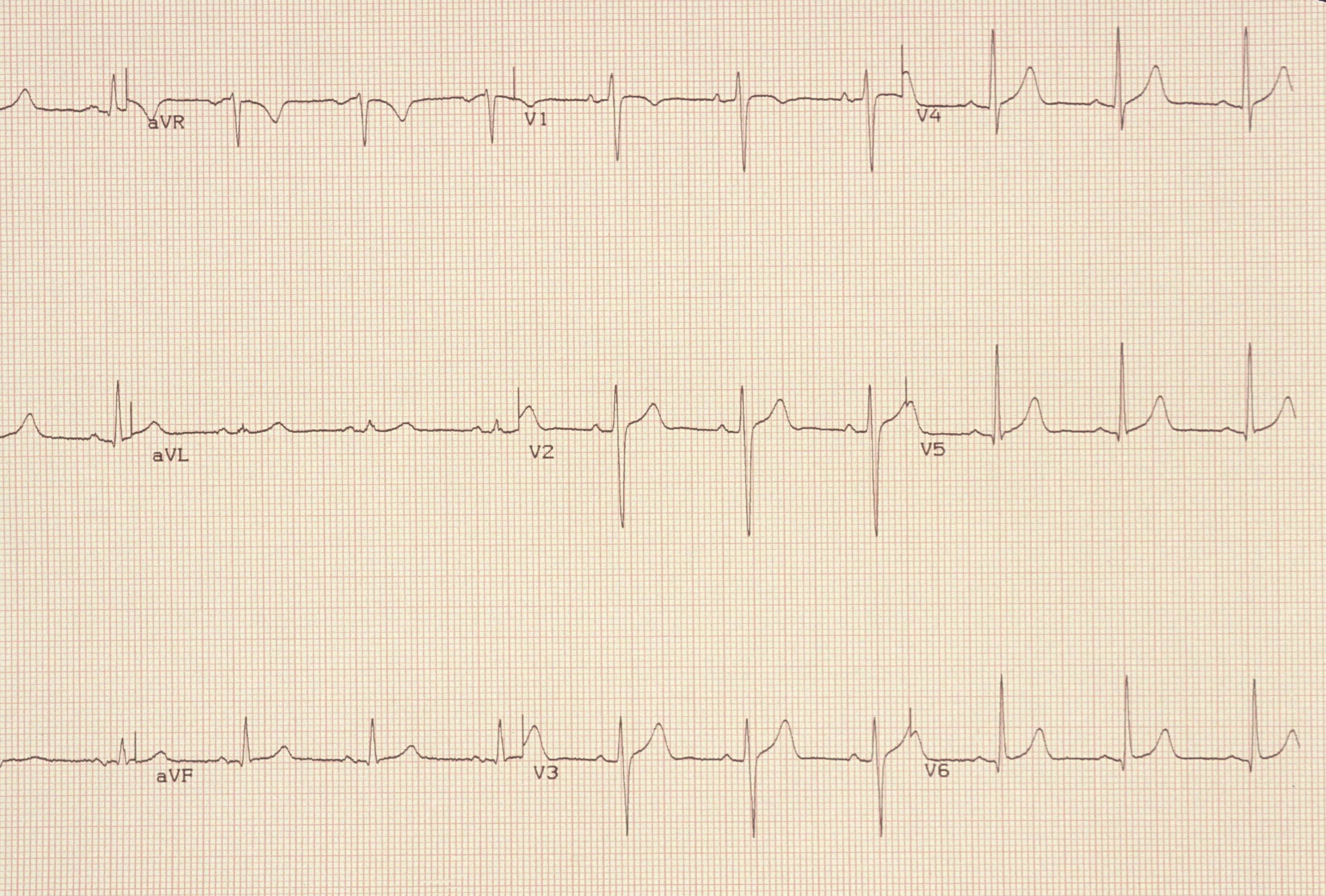 What to Expect from an Electrocardiogram (ECG)