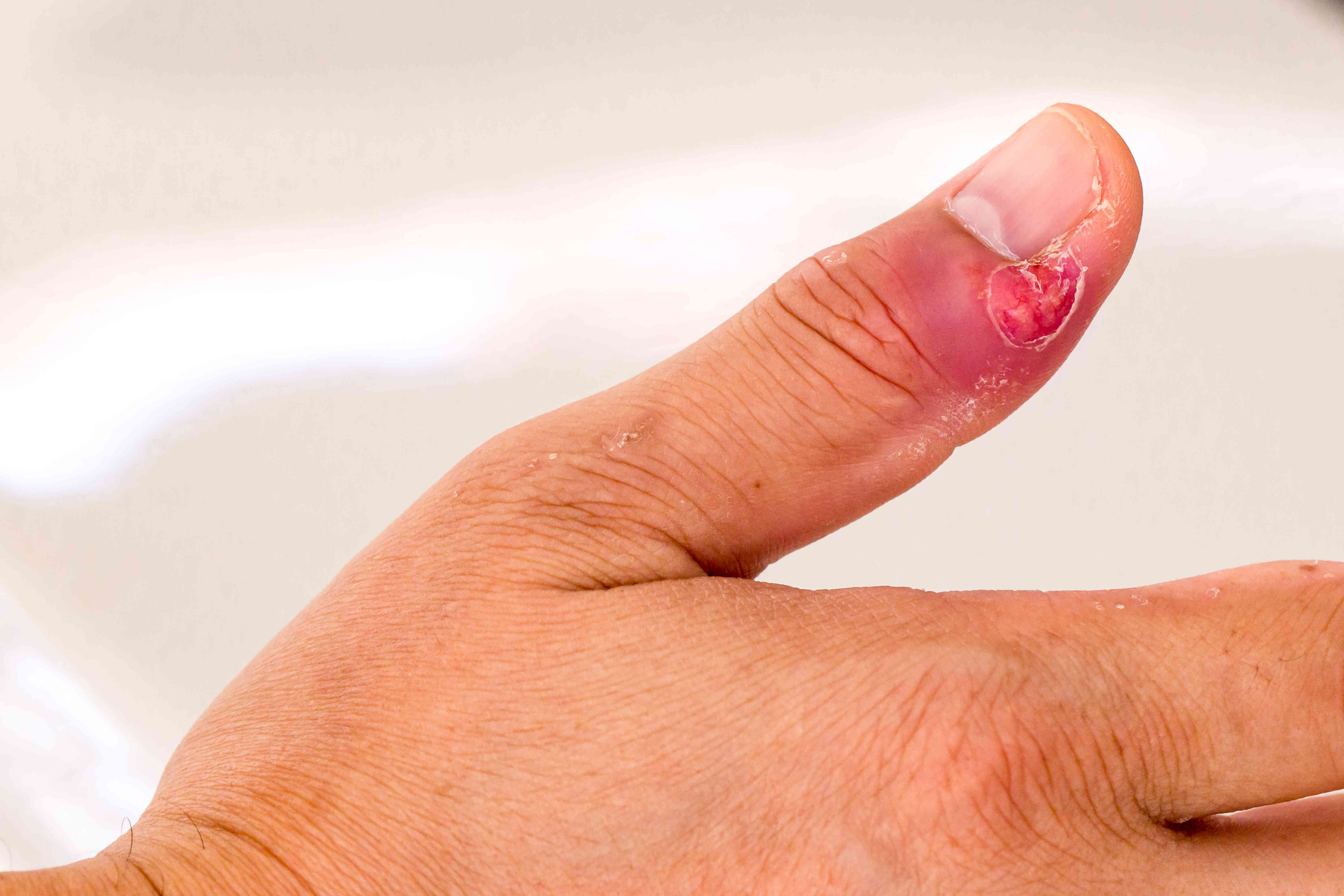 finger infection treatment
