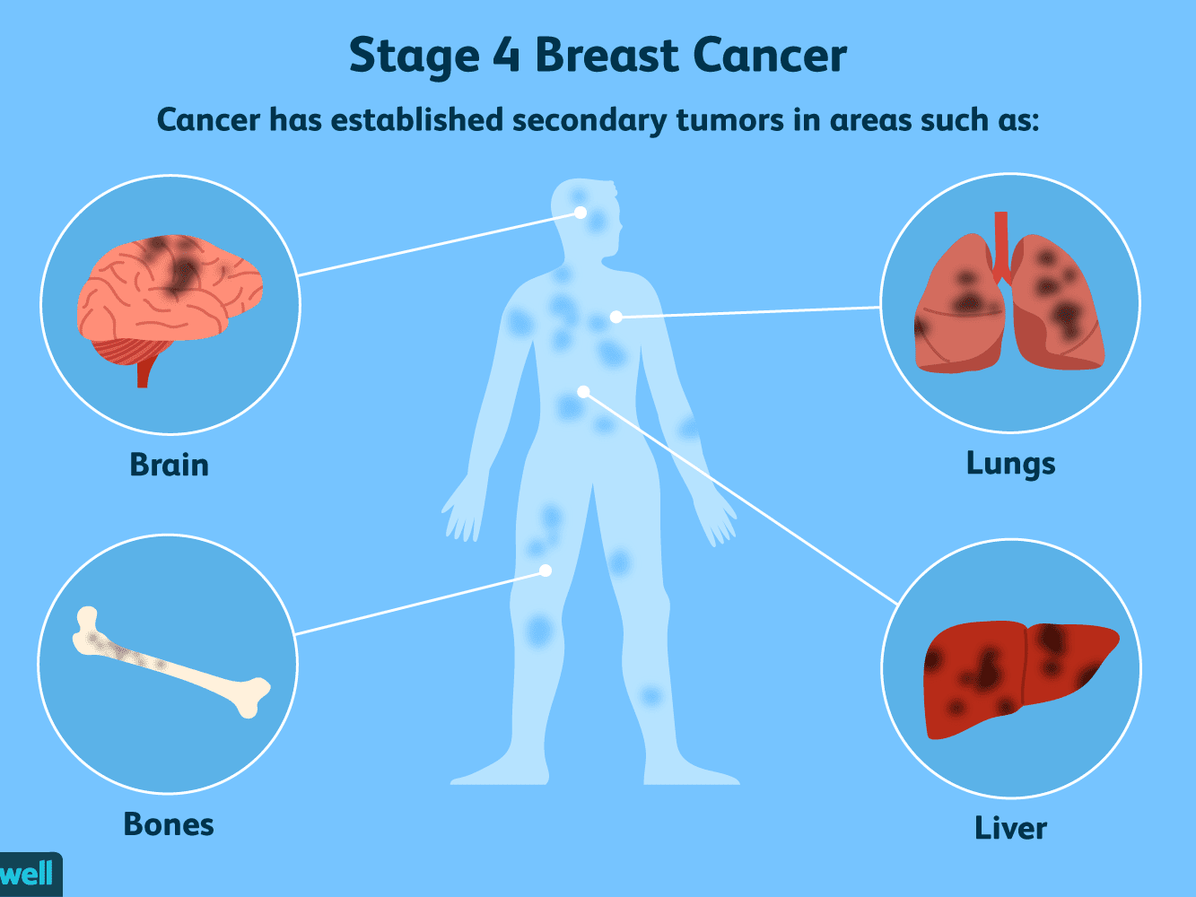 Where Breast Cancer Spreads Common Sites Of Metastasis