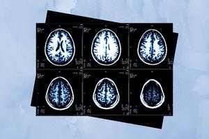 Brain scan image.