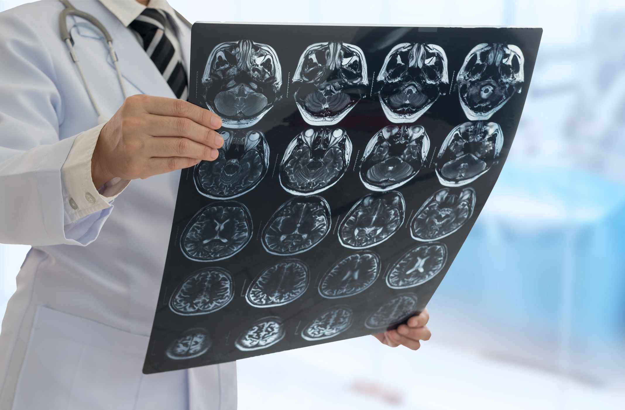 A doctor looking at a brain chart