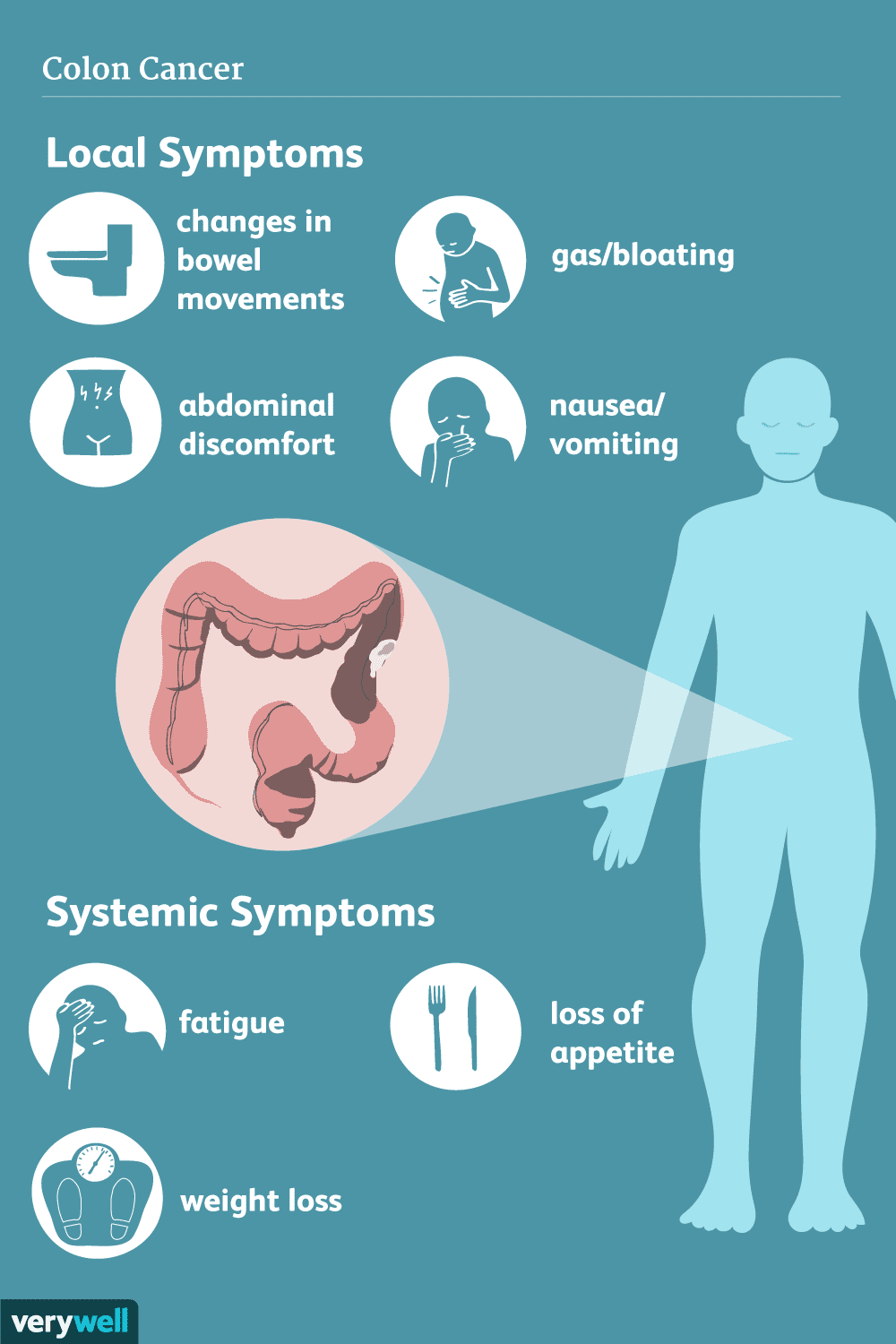 Colon Cancer Signs Symptoms And Complications