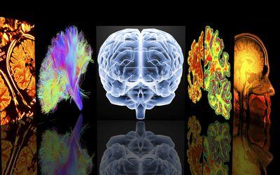 Neurology slide show