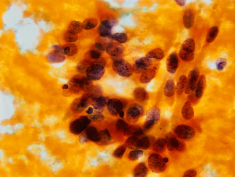 Cervical Pap smear showing abnormal cells