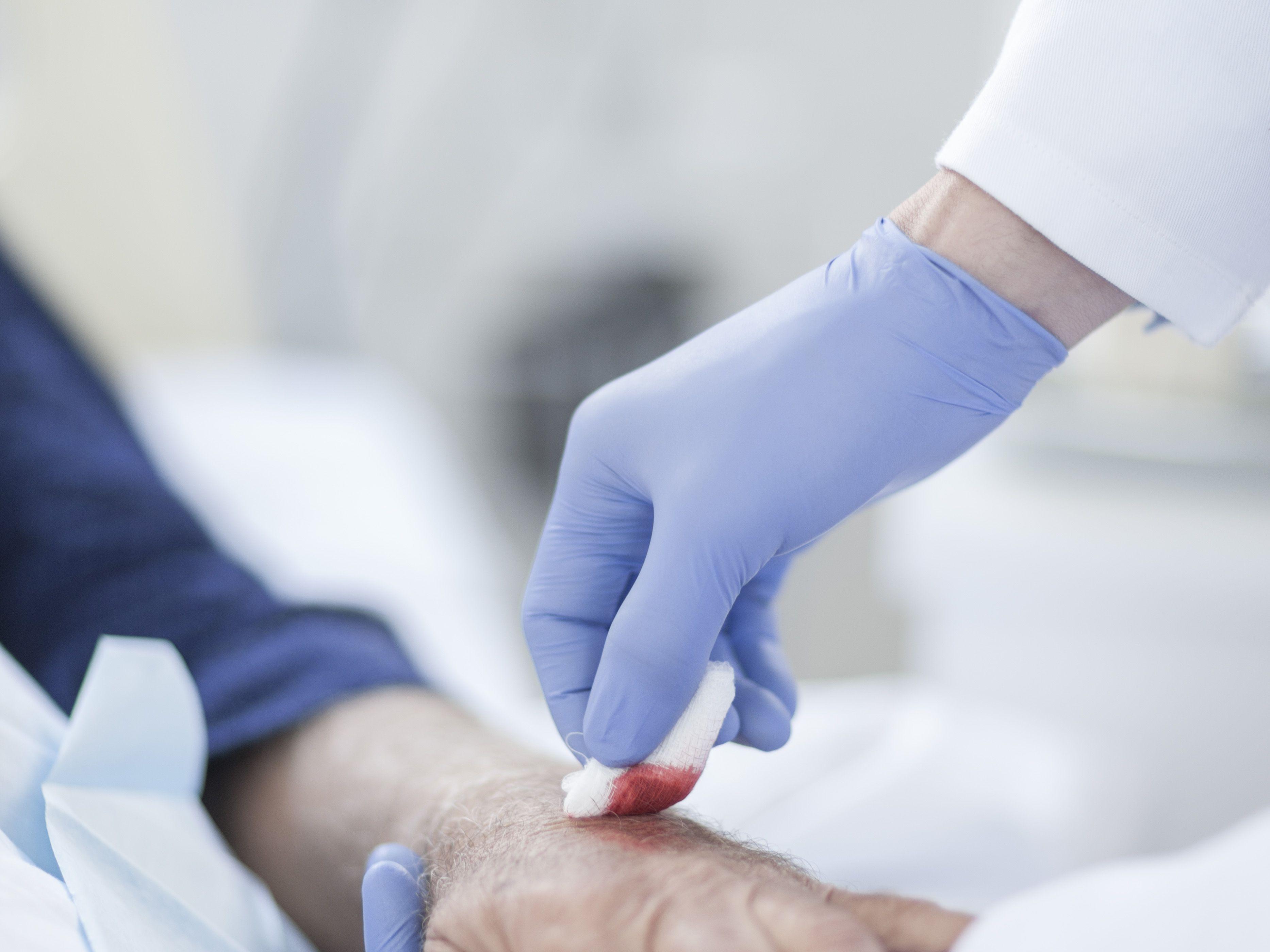 Cellulitis: Symptoms, Causes, Diagnosis, and Treatment