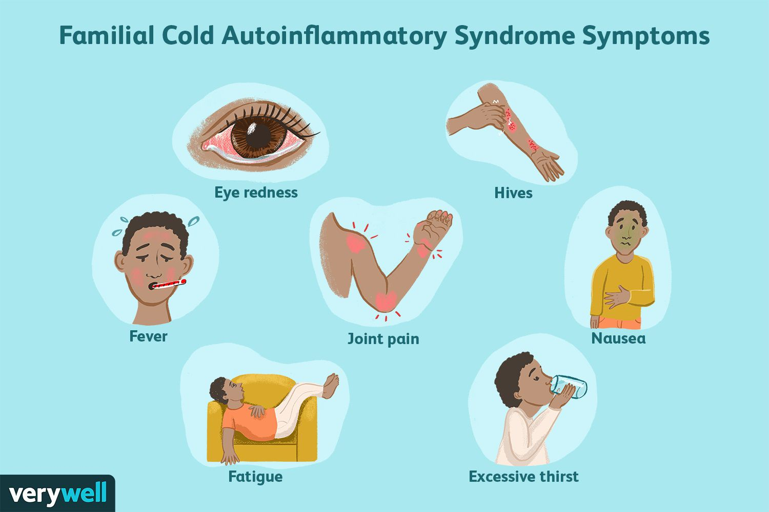 Familial Cold Autoinflammatory Syndrome Symptoms