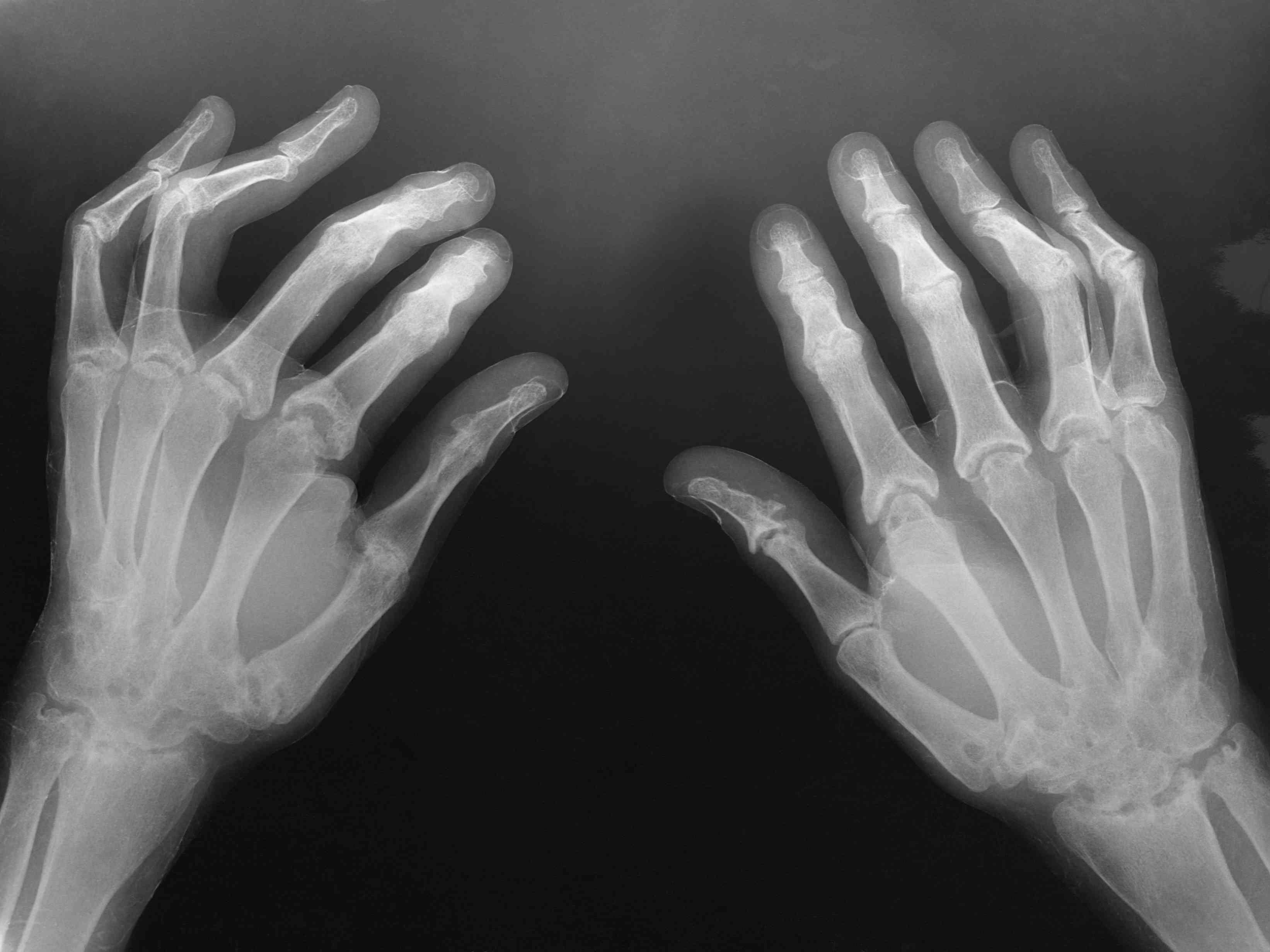 Osteoarthritis in the hands