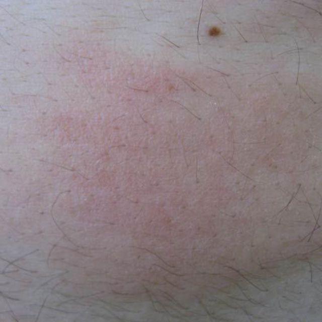 Close-Up of Hives on Man's Abdomen