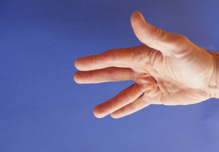 Causes and Treatment of Dupuytren's Contracture