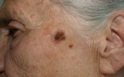 A close up of a lesion on an older adult woman's face that is denoted as being an example of Bowen's disease.