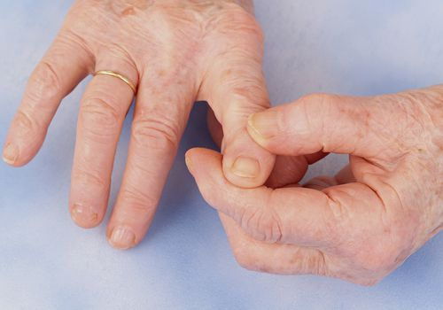 Hand osteoarthritis as seen in an old person's hands