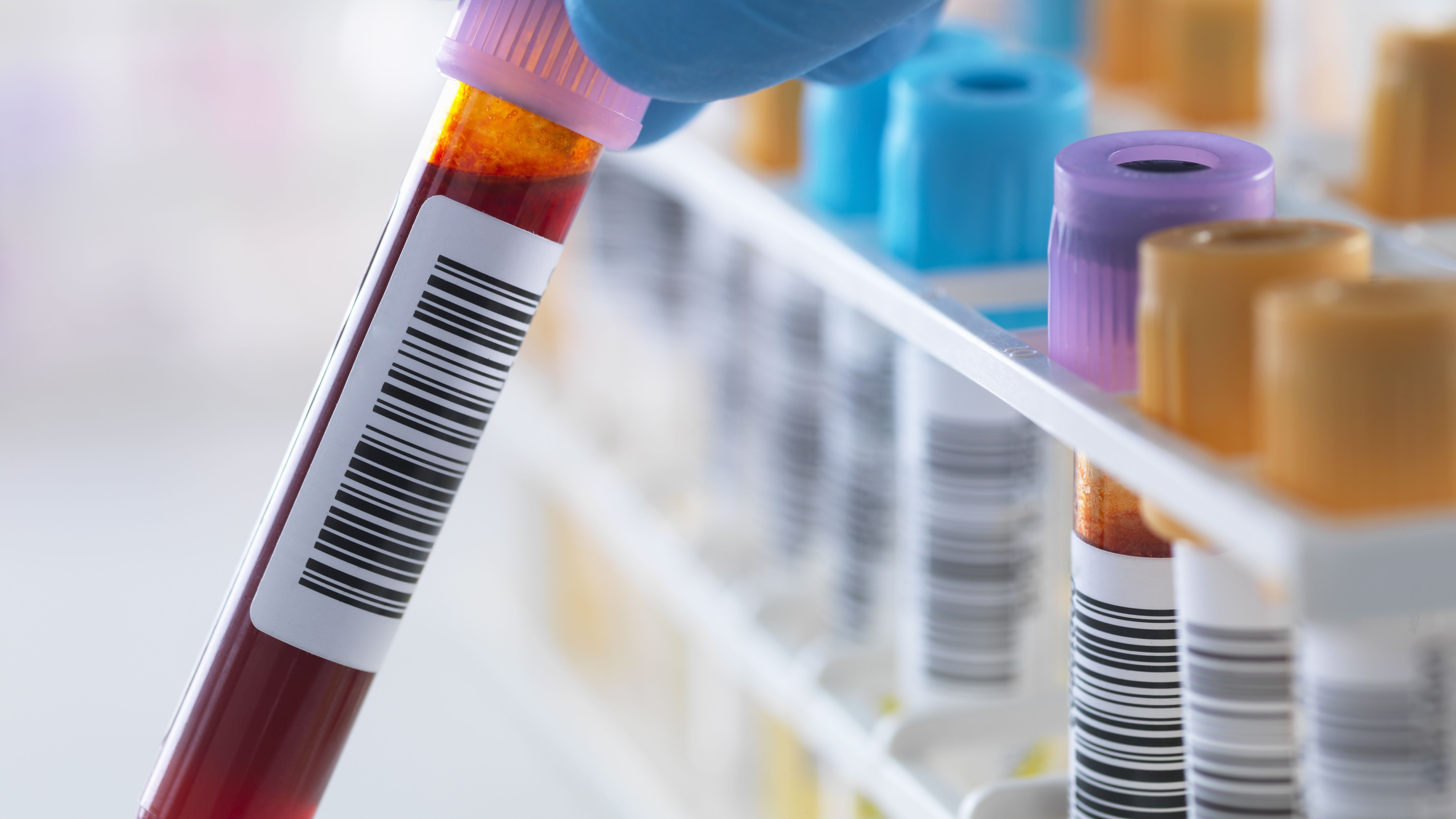 How Accurate are Herpes Blood Tests?