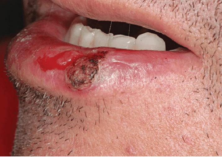 Squamous cell carcinoma of the lip: shallow ulcer with infiltrated border and covered with scales and crusts. Borderline ulcerated lesion (ulcerated actinic cheilitis, histologically)