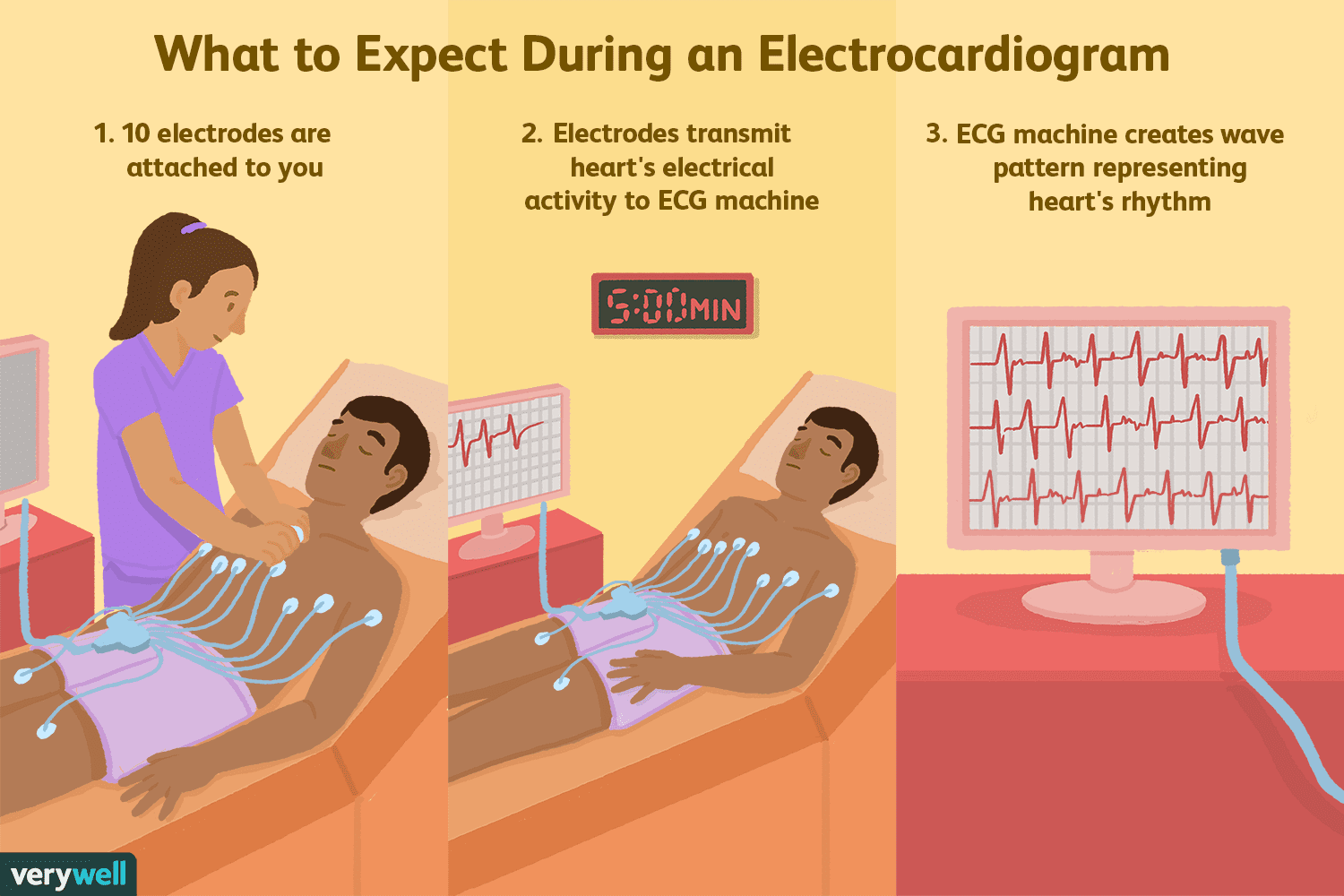 Electrocardiogram Ecg Uses Side Effects Procedure Results