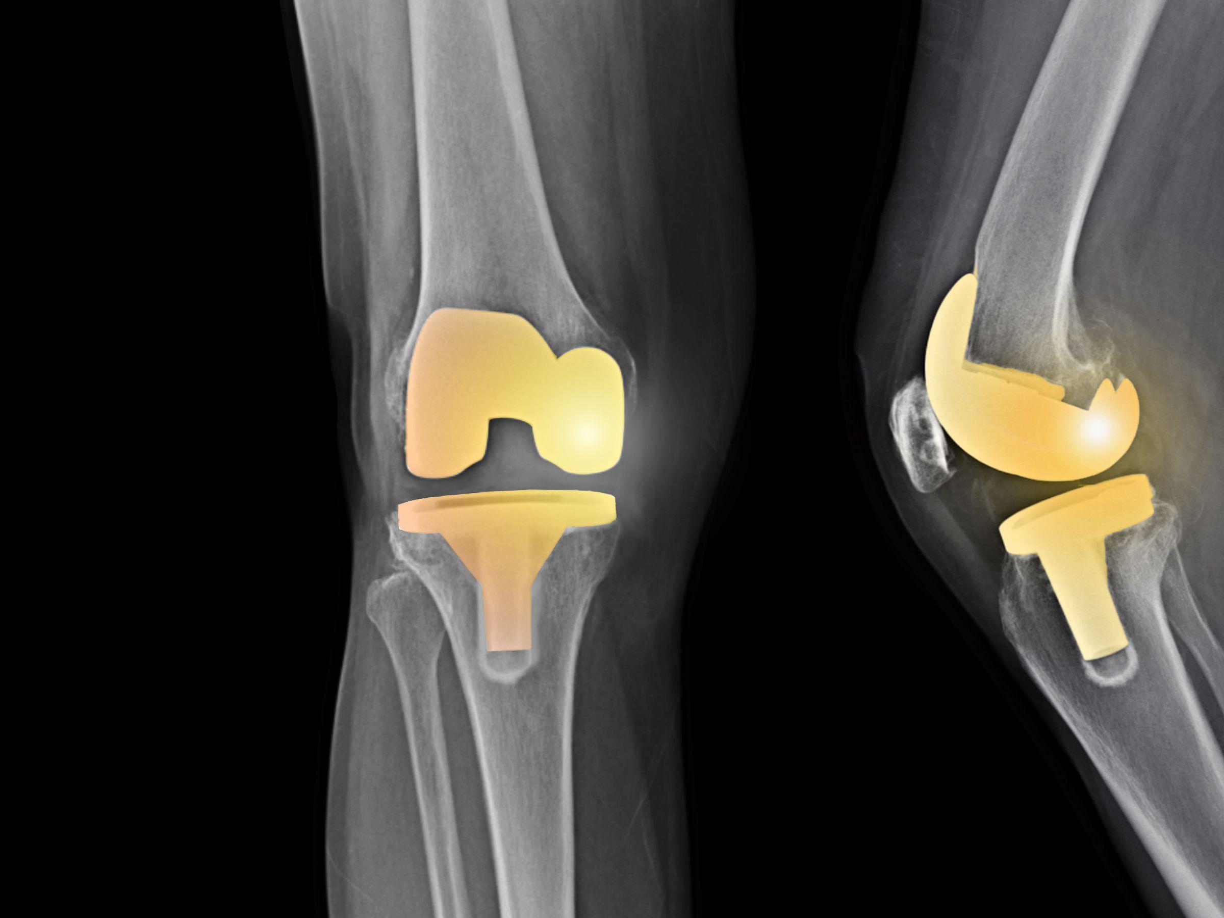 best knee replacement surgeons in michigan)
