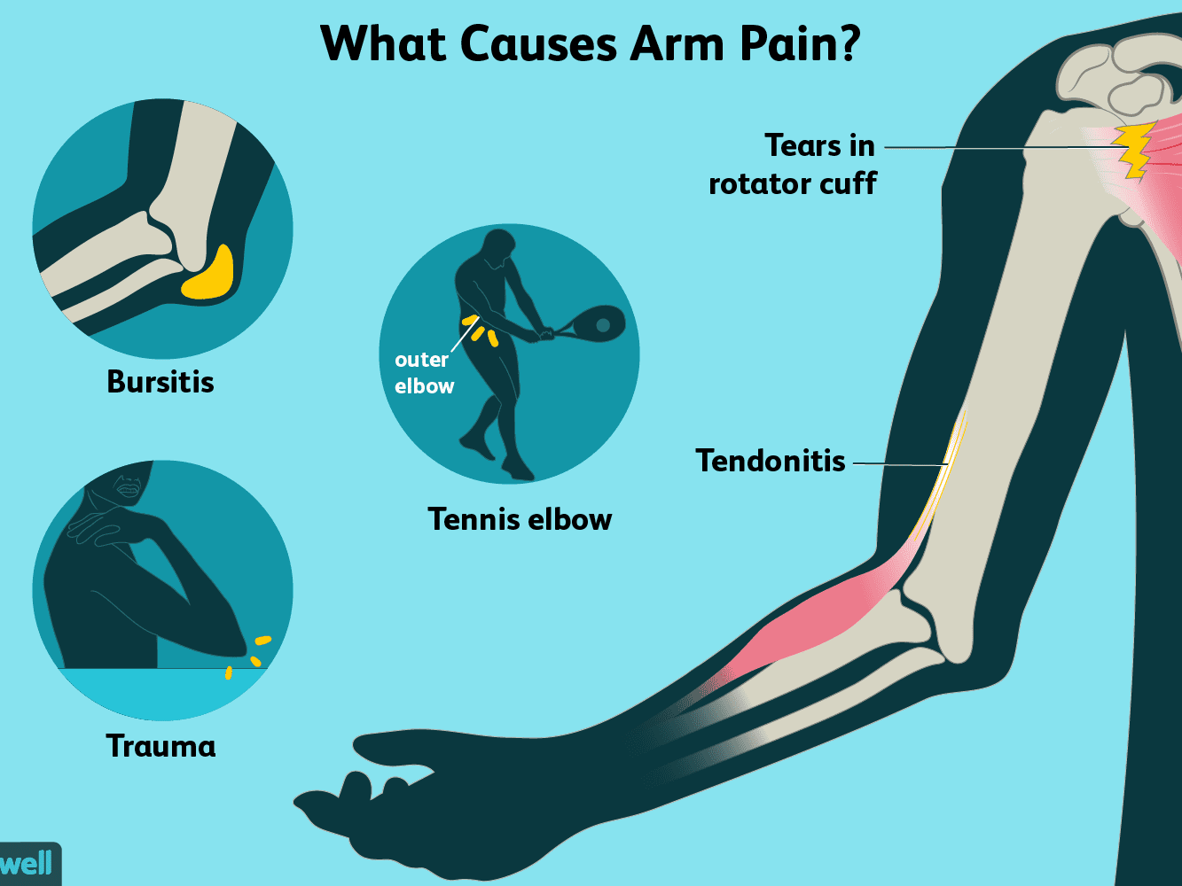 Arm Pain: Causes, Treatment, and When to See a Doctor