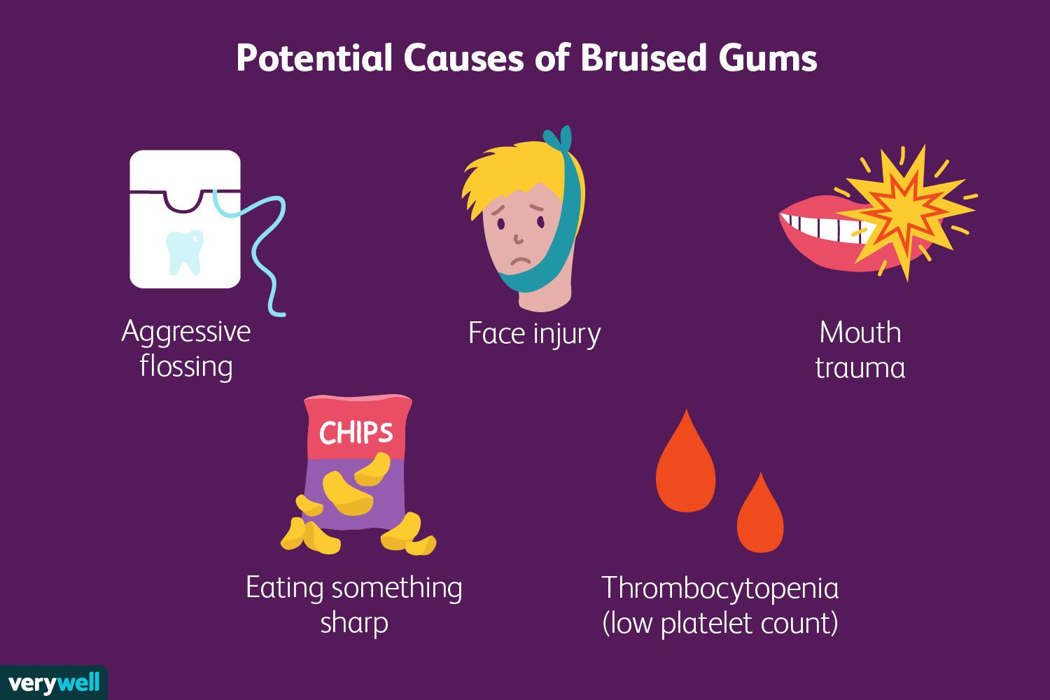 Potential Causes of Bruised Gums