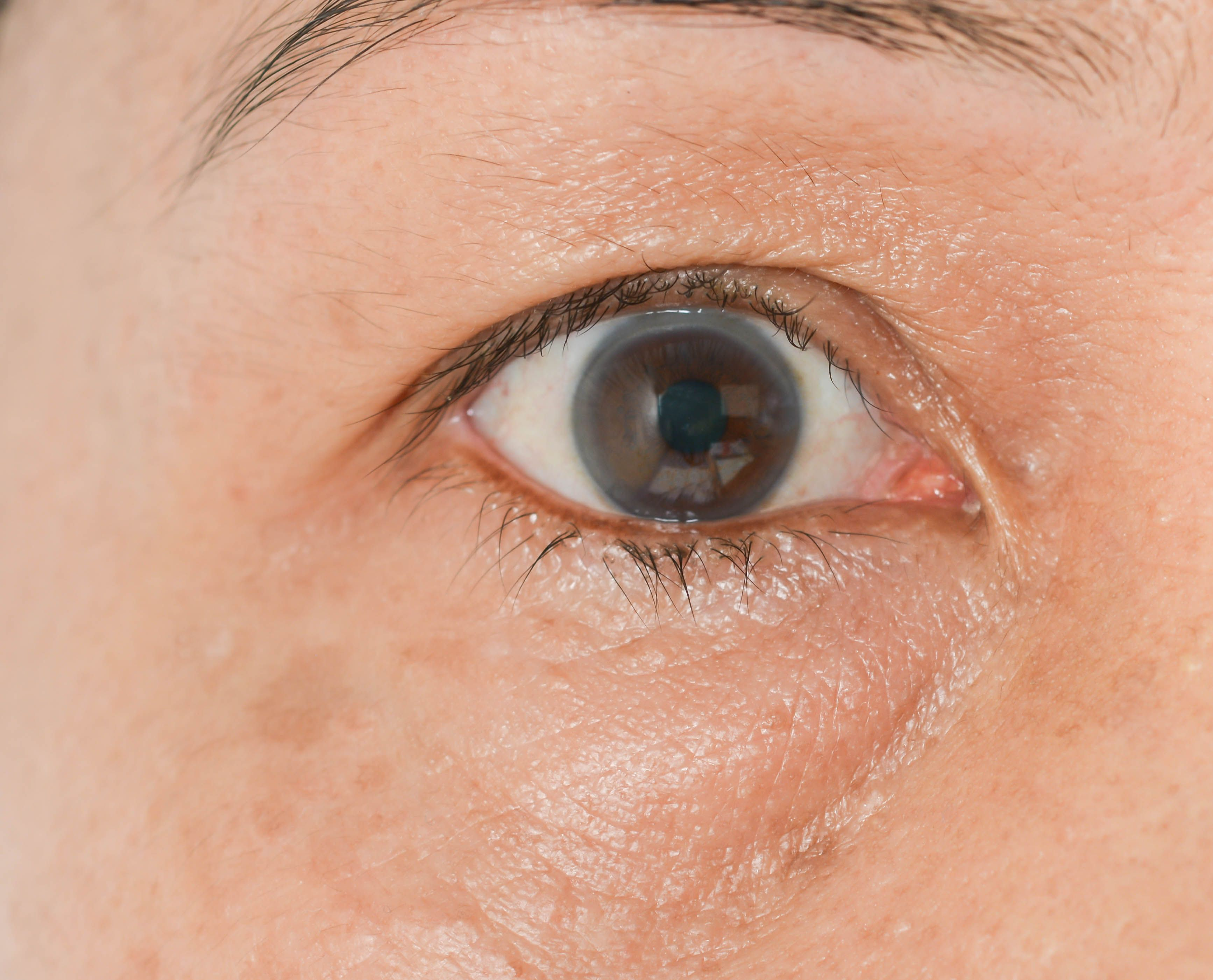 What Causes Puffy Eyes?
