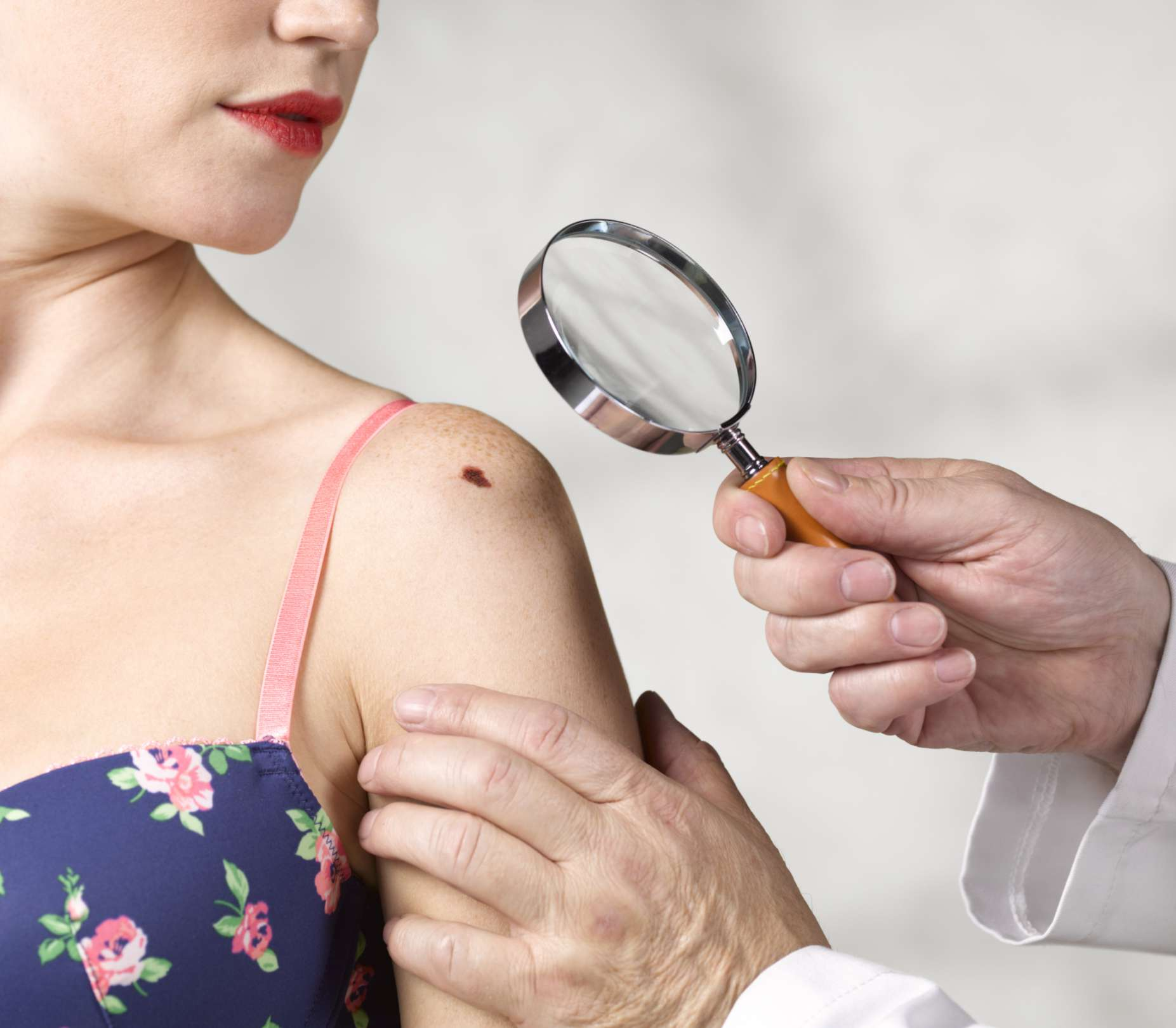 Doctor inspecting mole