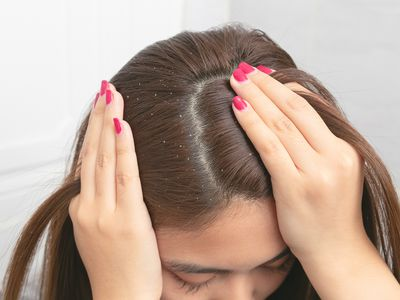 flakes in hair