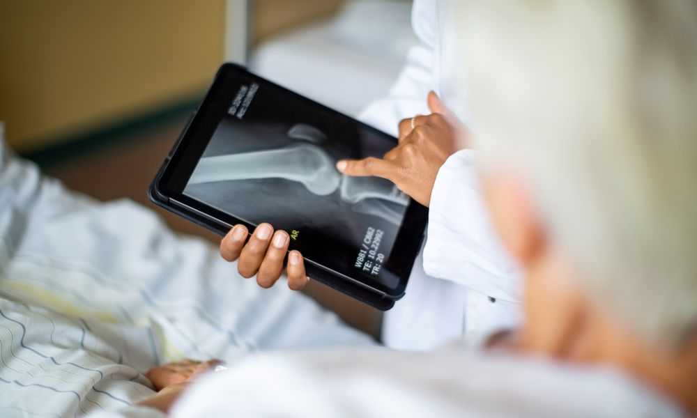 Doctor showing result of radiography to patient - stock photo