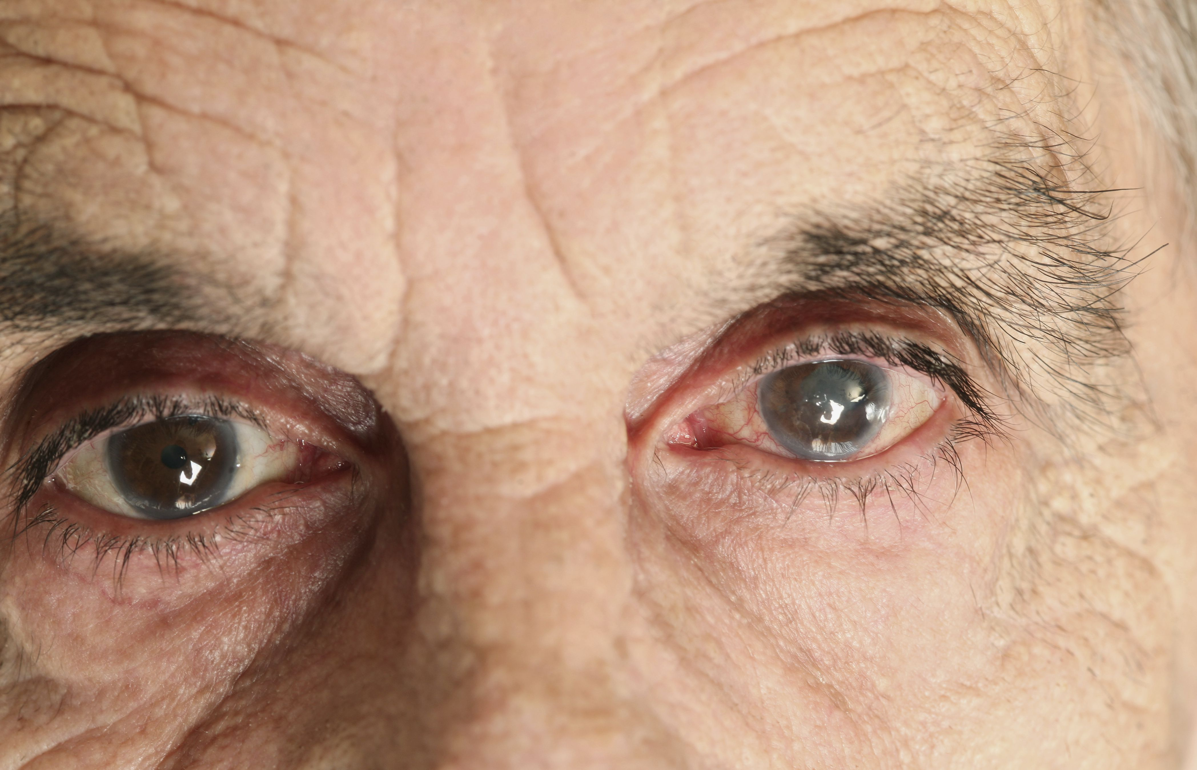 how to detect glaucoma in eye