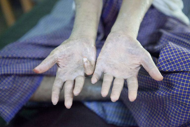 Leprosy patient's hands