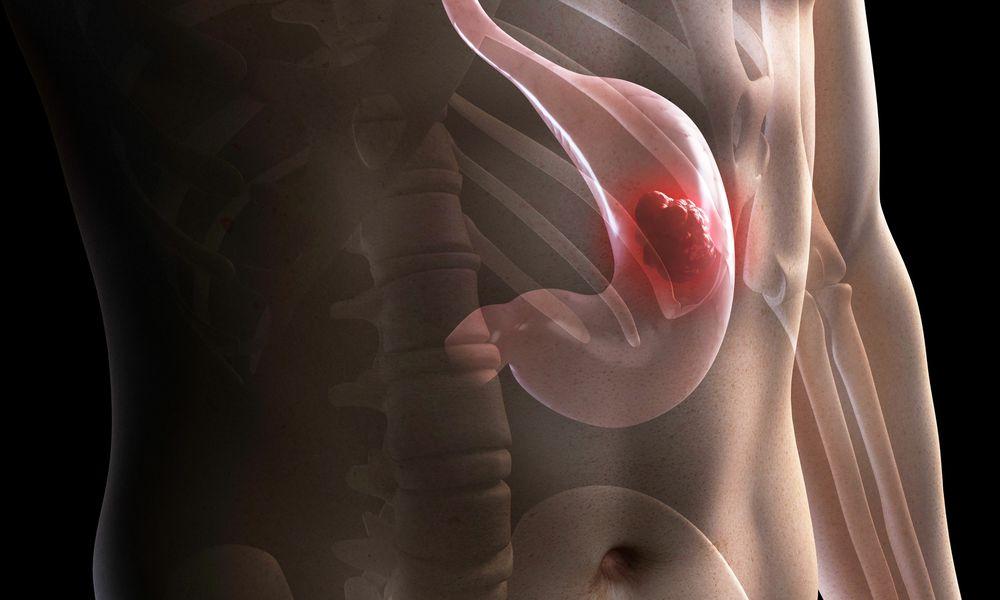 Illustration of stomach cancer