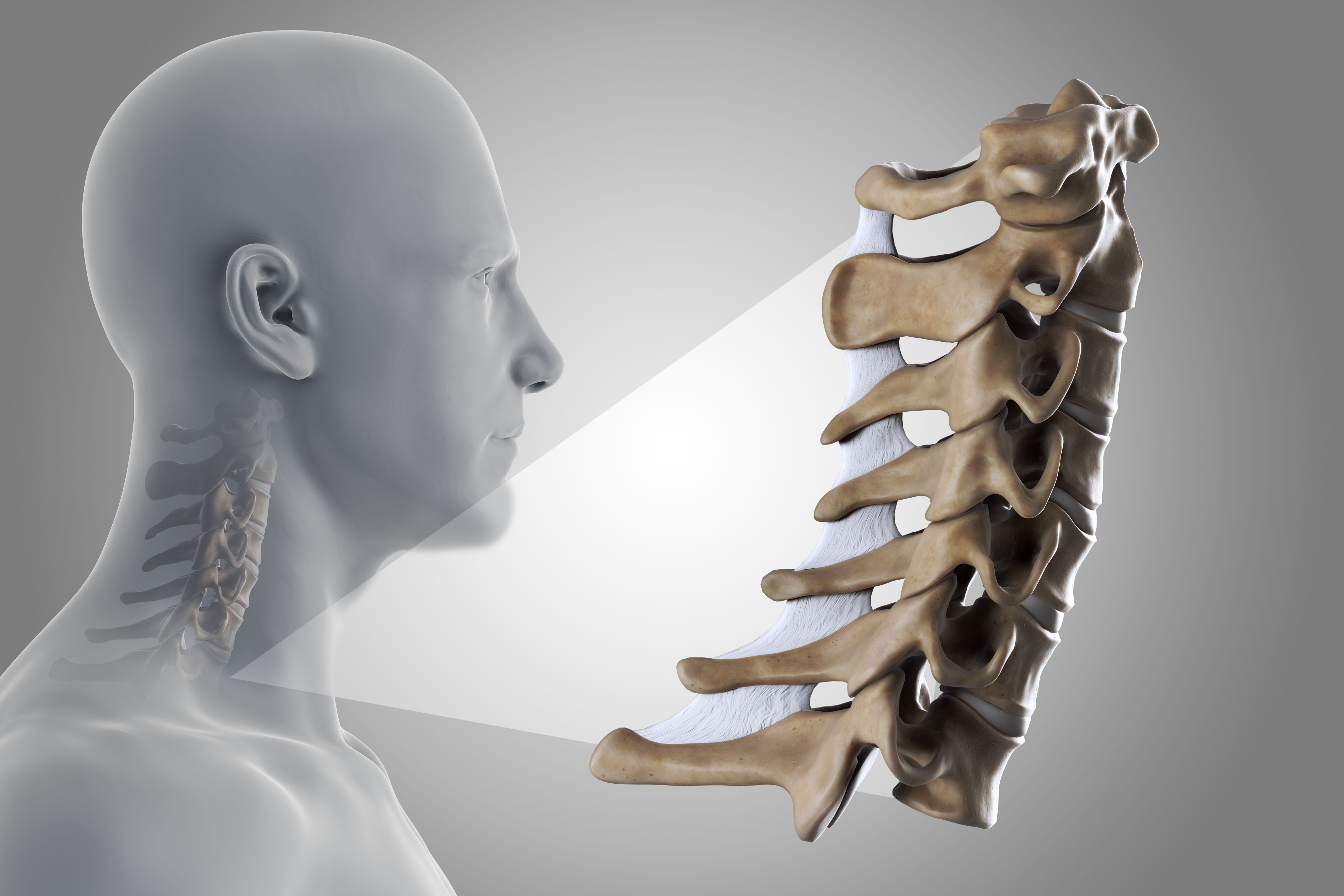 Should You Have Surgery For Cervical Radiculopathy