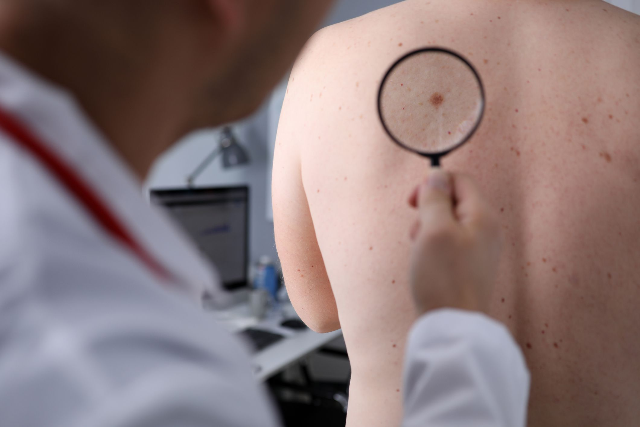 Checking for early signs of skin cancer
