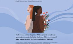 treatment of breast cancer in Black women