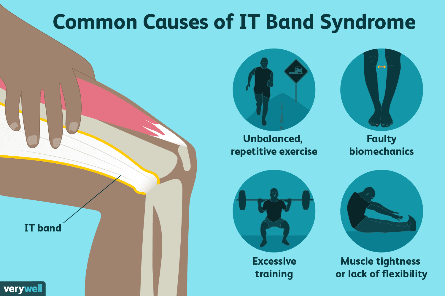 iliotibial band syndrome causes)