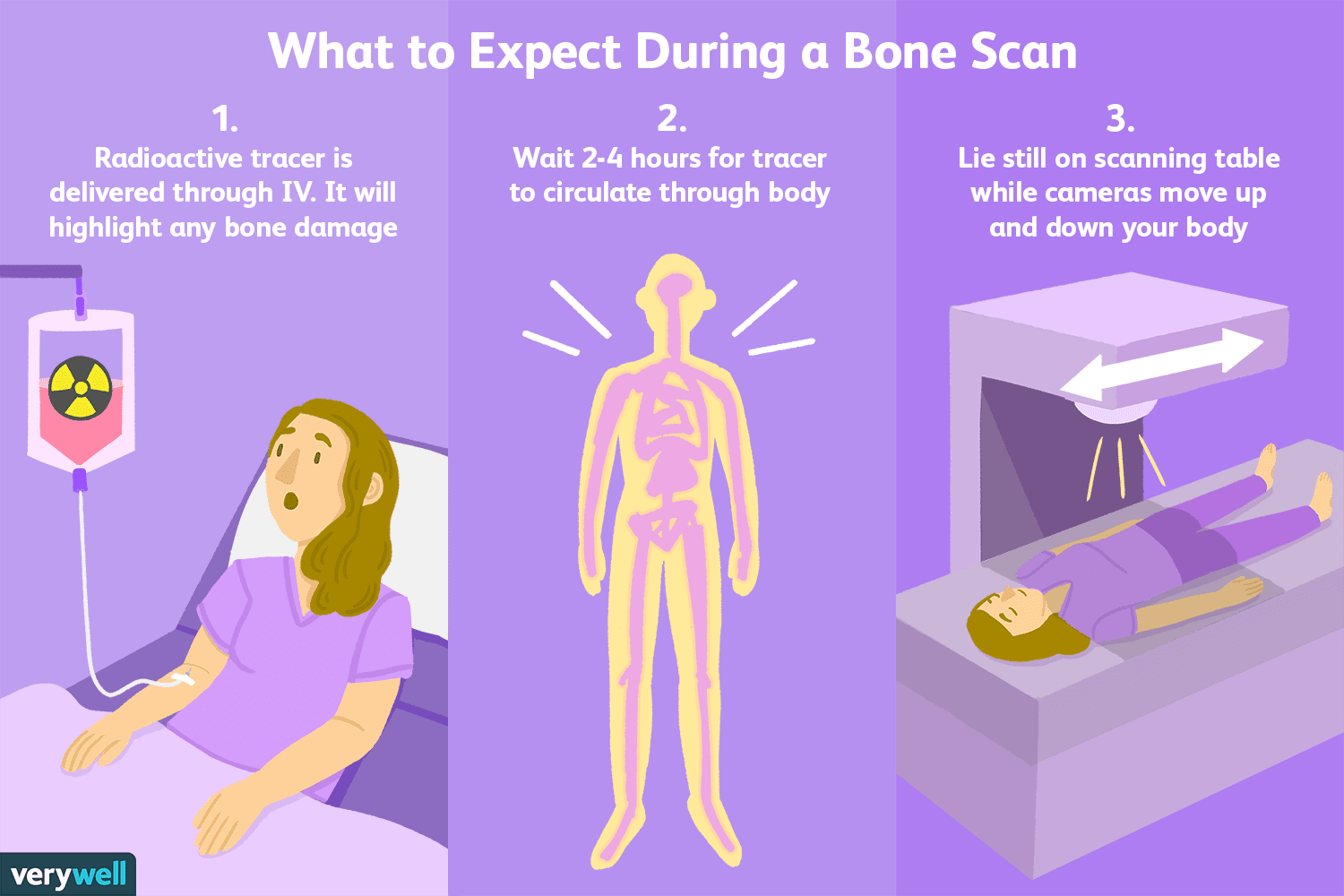 Bone Scans: Uses, Side Effects, Procedure, Results