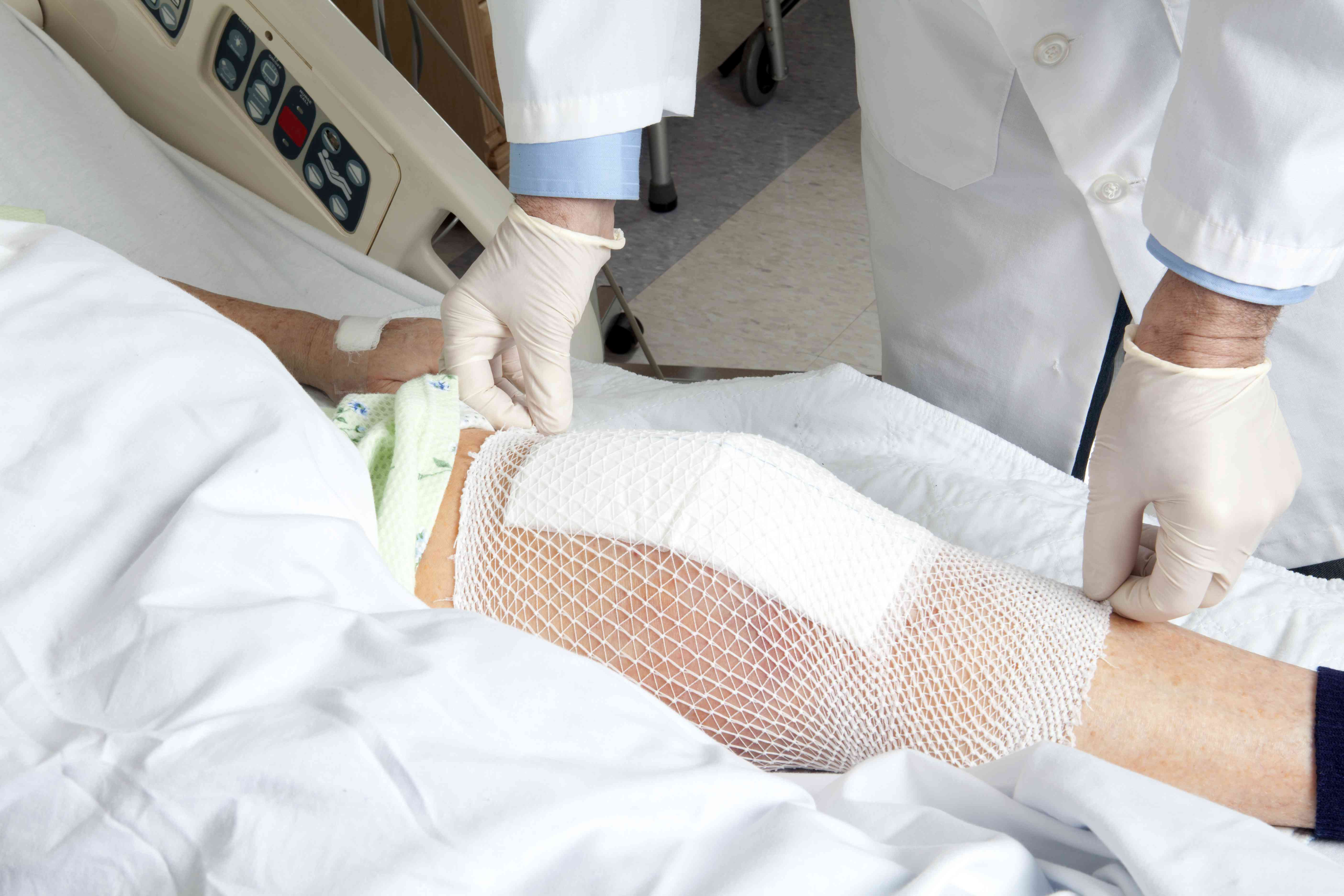 Knee replacement bandage on person in hospital bed
