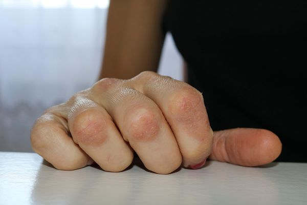 Hands affected by psoriasis on fingers and knuckles. A close view of redness caused by psoriasis on hands resting on a white table. Premium Access XSSML 2125 x 1416 px | 7.08 x 4.72 in @ 300 dpi | 3.0 MP Size Guide Add notes DOWNLOAD AGAIN Details Credit: Alobeti Creative #: 657445350 License type: Royalty-free Collection: