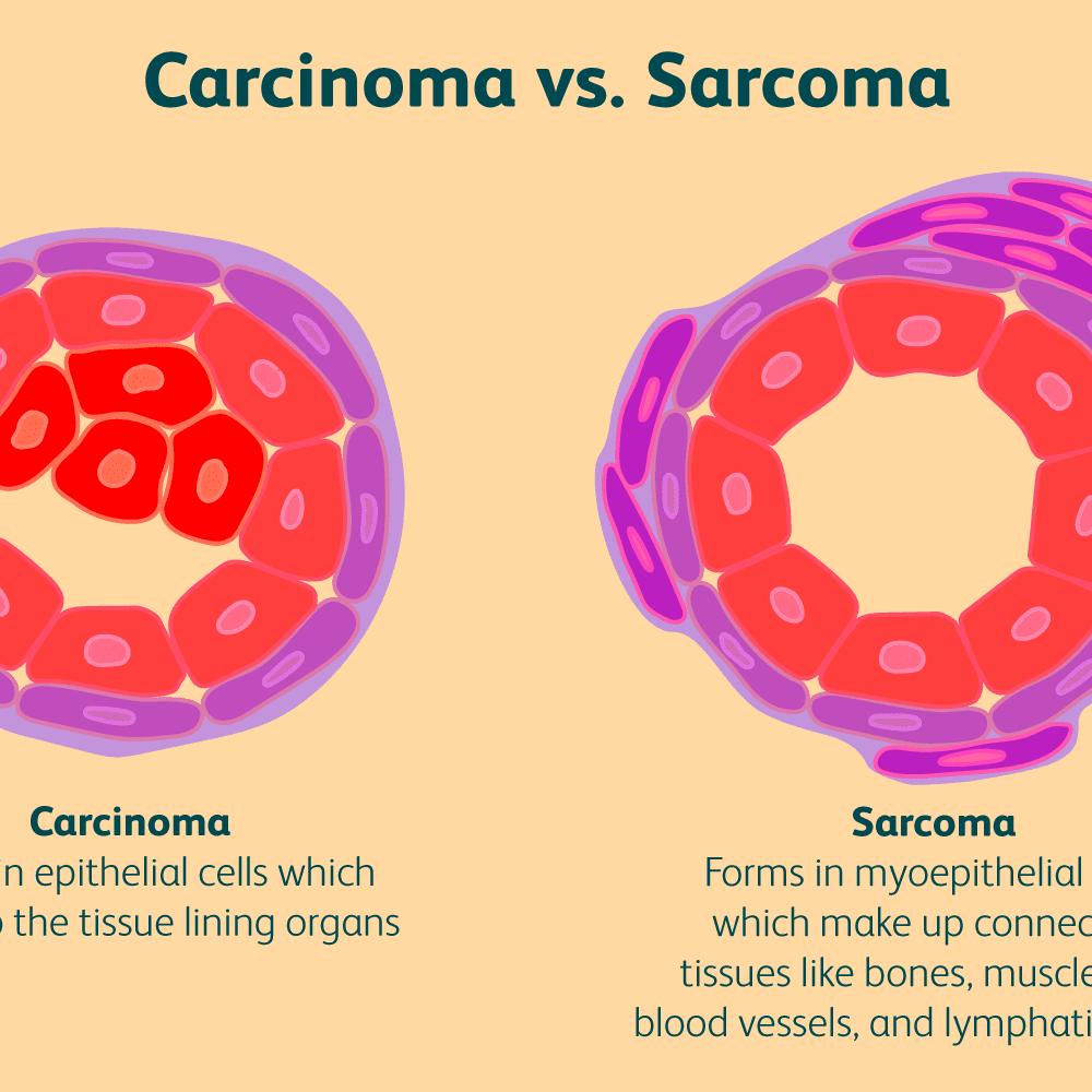 sarcoma cancer neoplasm