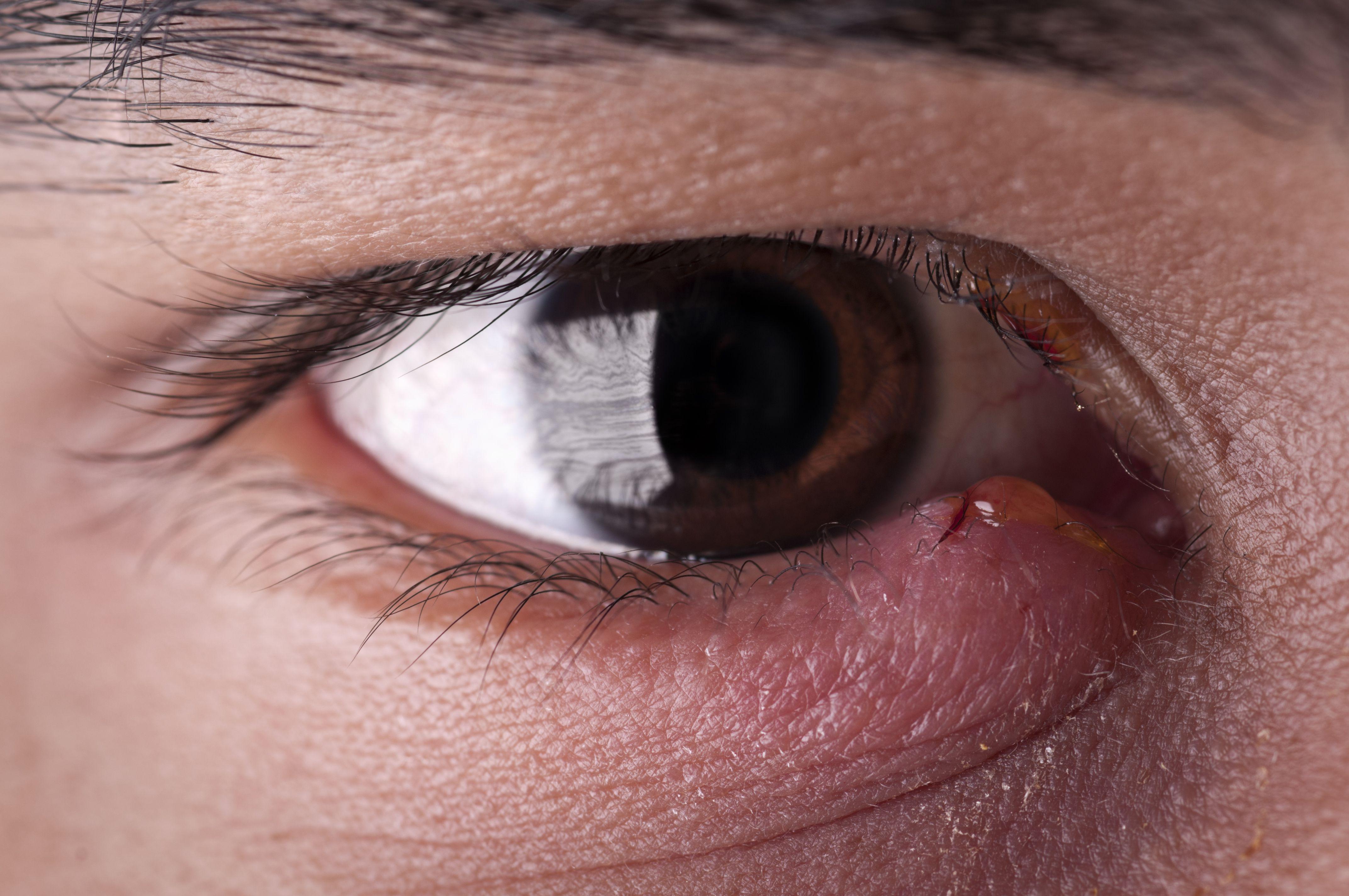 Top 6 Causes Of Swollen Eyelids
