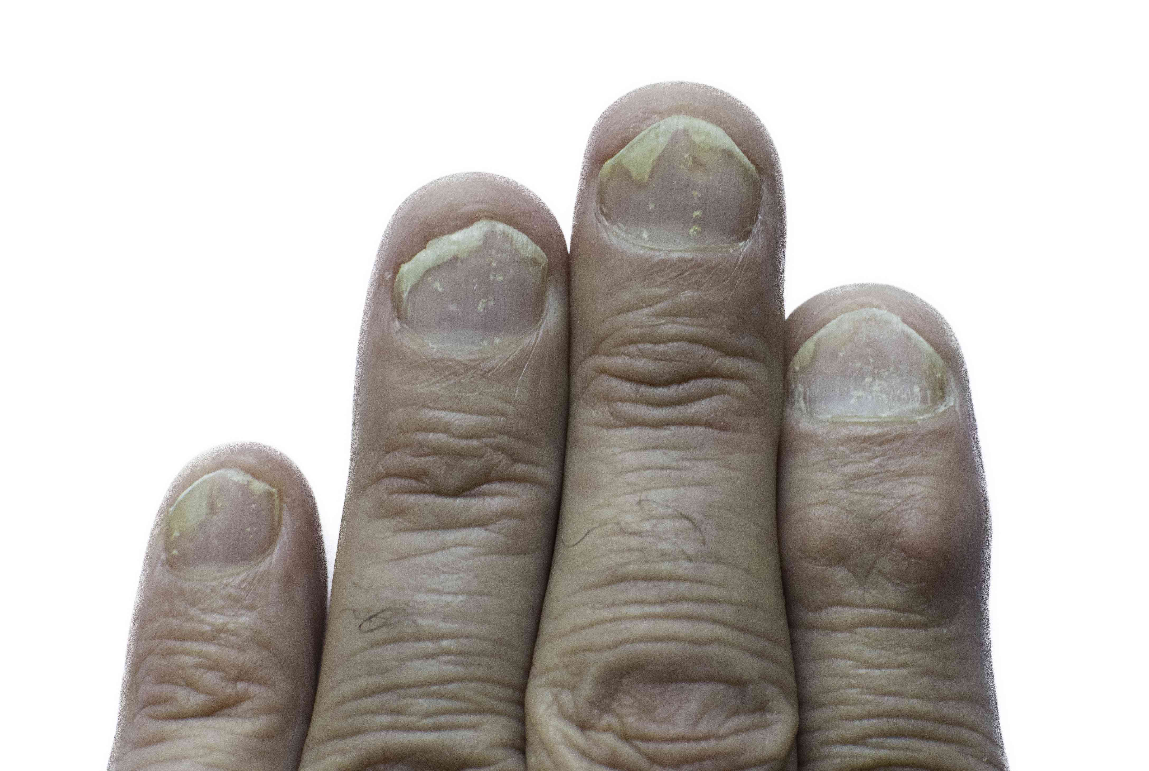 Psoriasis of the nails